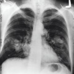 Chest x-ray showing lung cancer from the National Cancer Institute